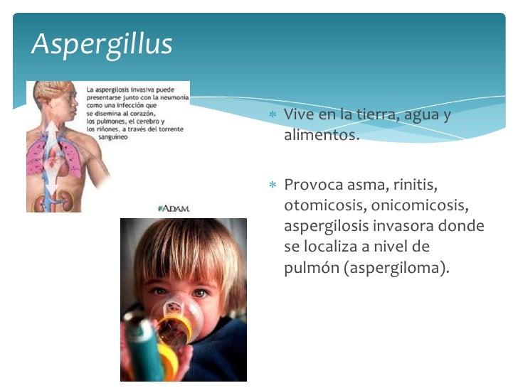 Aspergillus <br />Vive en la tierra, agua y alimentos.<br />Provoca asma, rinitis, otomicosis, onicomicosis, aspergilosis ...