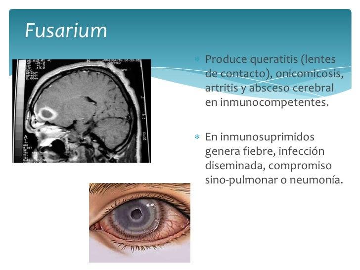 Fusarium<br />Produce queratitis (lentes de contacto), onicomicosis, artritis y absceso cerebral en inmunocompetentes.<br ...