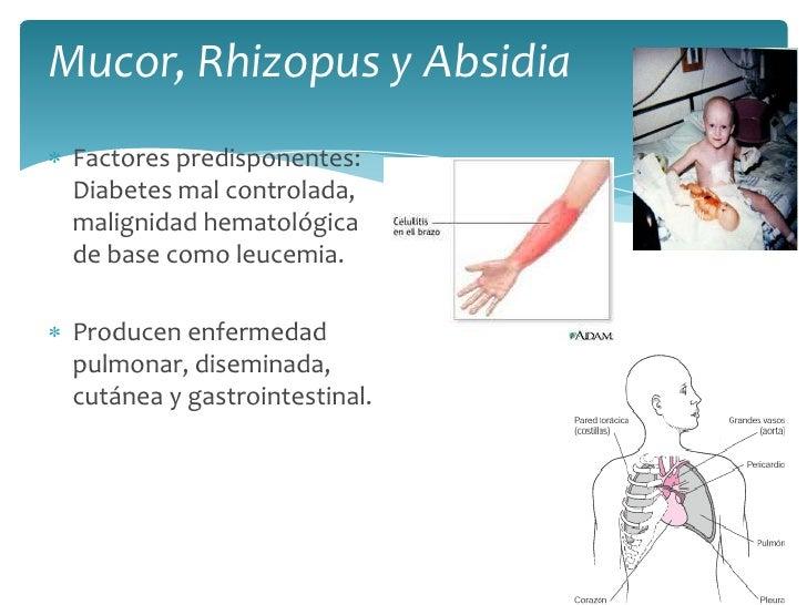 Mucor, Rhizopusy Absidia<br />Factores predisponentes: Diabetes mal controlada, malignidad hematológica de base como leuce...