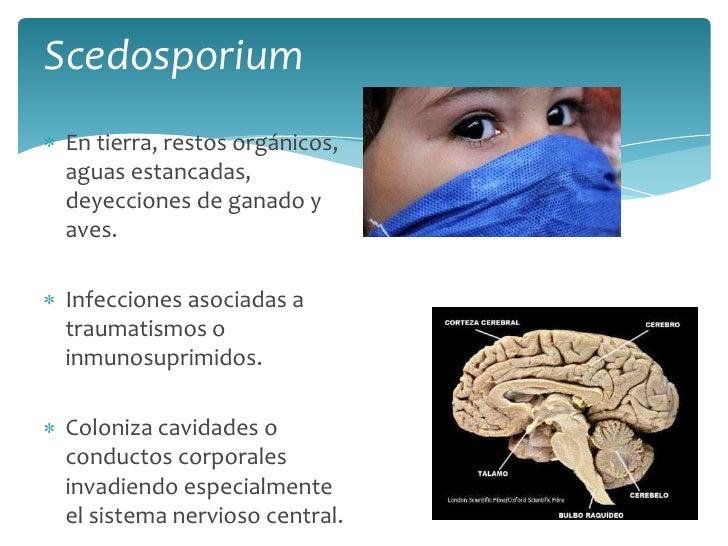 Scedosporium<br />En tierra, restos orgánicos, aguas estancadas, deyecciones de ganado y aves.<br />Infecciones asociadas ...