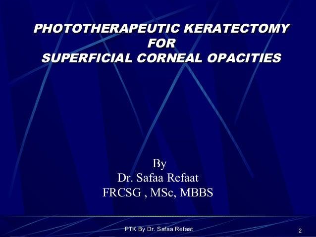 PHOTOTHERAPEUTIC KERATECTOMY EBOOK