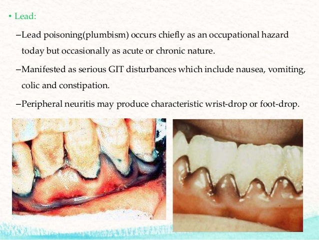 Physical & chemical injuries in prosthodontics