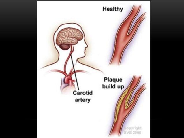 Coronary heart disease -leads to heart attack