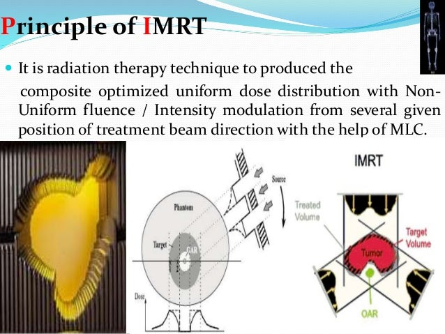 Intensity Modulated Radiation Therapy And Image Guided