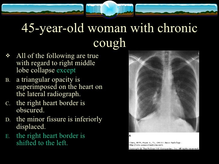 physiology of chest x-ray, Skeleton