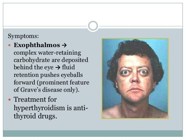 Symptoms:  Exophthalmos → complex water-retaining carbohydrate are deposited behind the eye → fluid retention pushes eyeb...