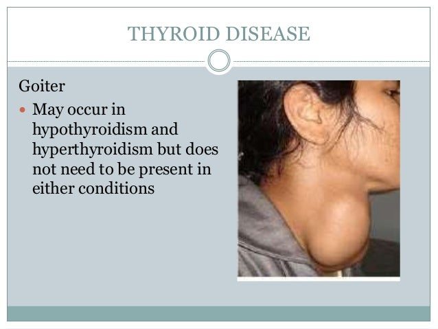 THYROID DISEASE Goiter  May occur in hypothyroidism and hyperthyroidism but does not need to be present in either conditi...