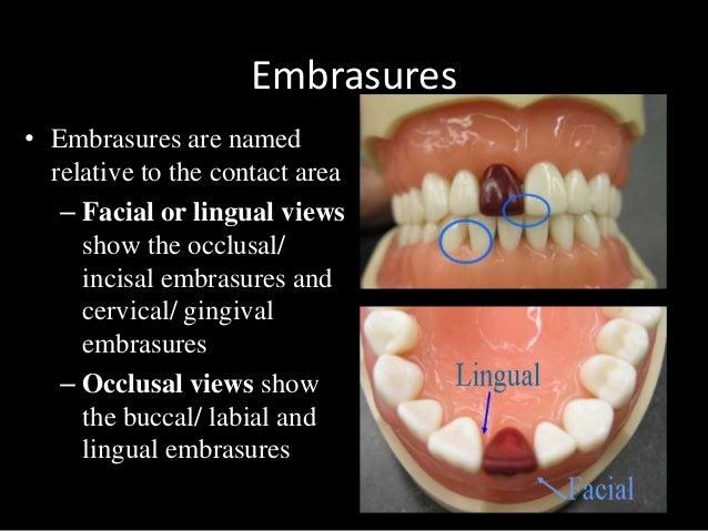 dental anatomy physiology of permanent teeth 15 638
