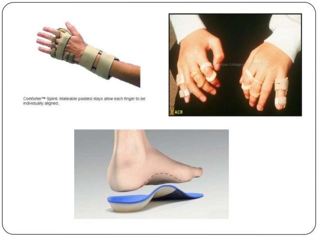 physiotherapy management for rheumatoid arthritis