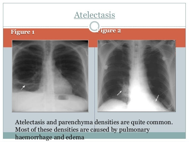 Rehabilitation Of Patient With Pleural Effusion
