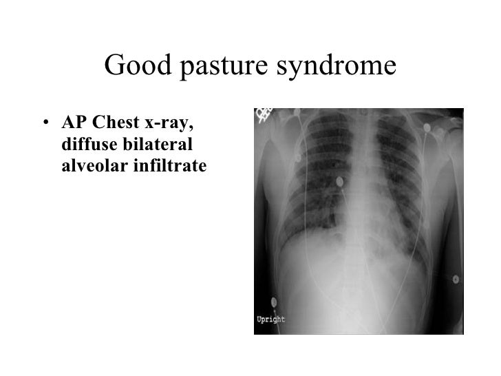 Good pasture syndrome <ul><li>AP Chest x-ray, diffuse bilateral alveolar infiltrate   </li></ul>