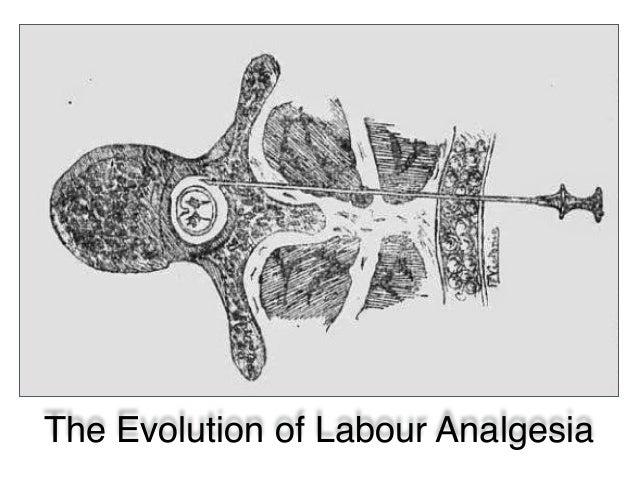 The Evolution of Labour Analgesia