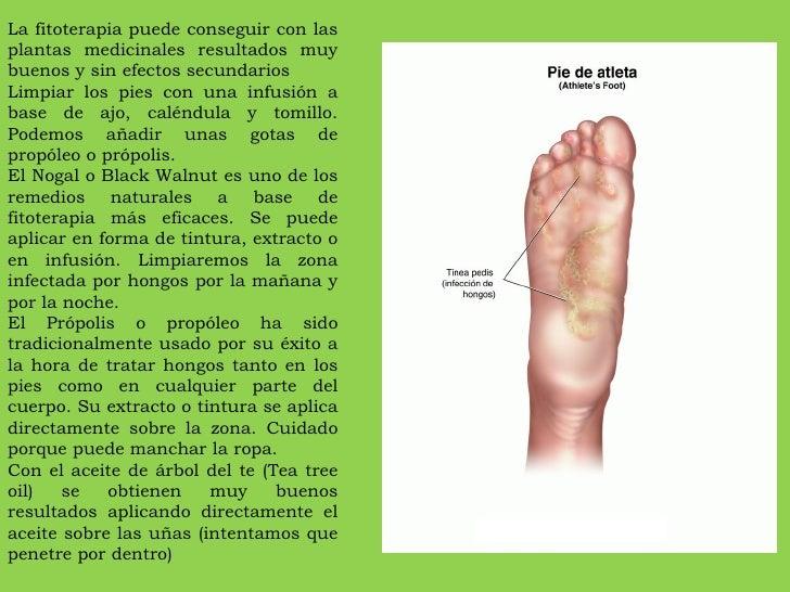 Como curar la supuración sobre el dedo cerca de la uña después del padrastro