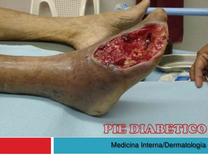PIE DIABETICO PDF DOWNLOAD