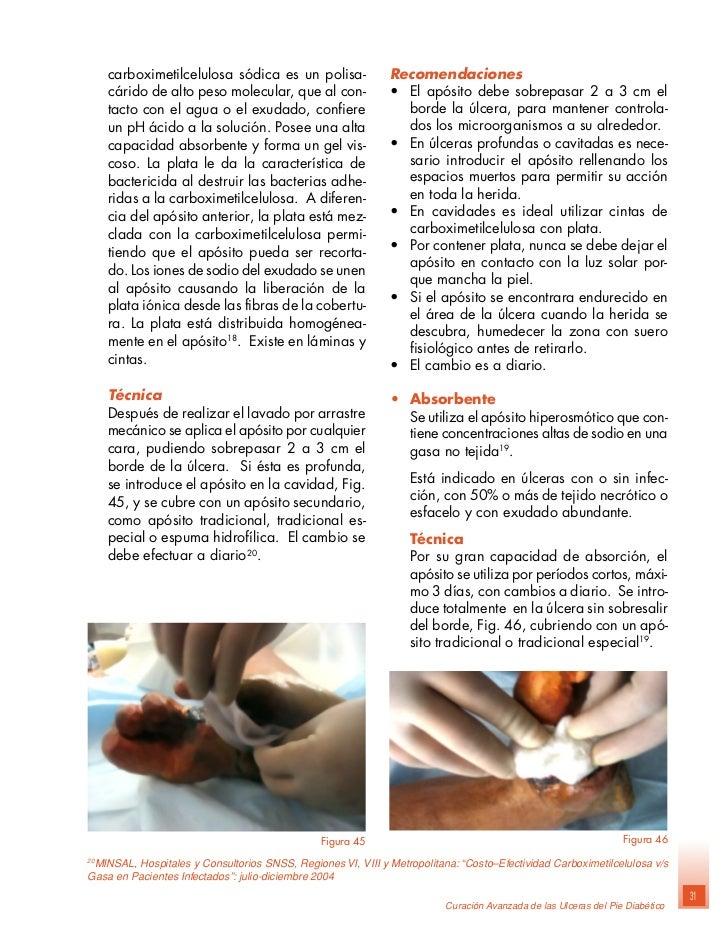 Manual tratamiento : Pie diabetico