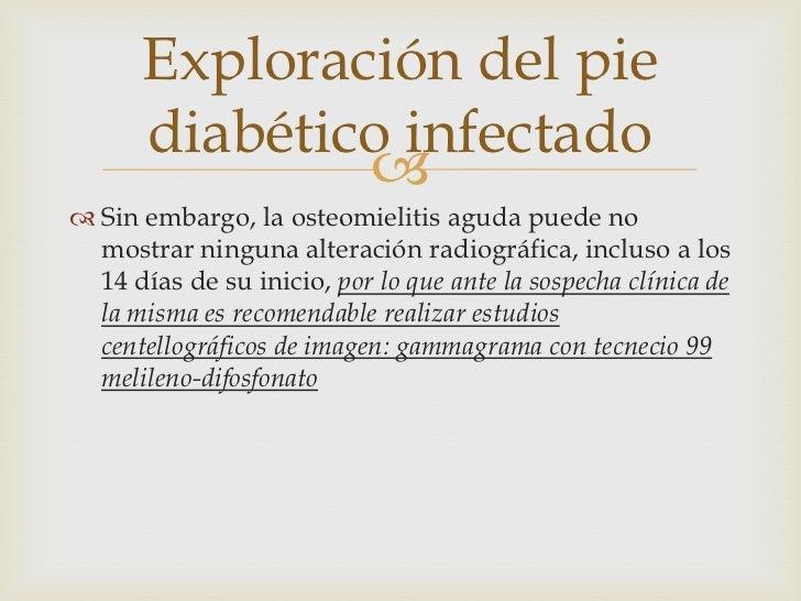 Diabetes - Pie diabetico