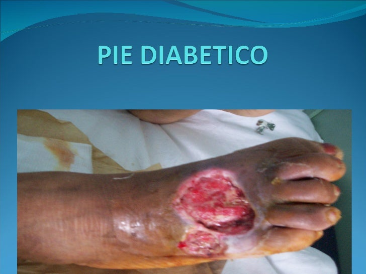 Pie diabetic ocopia