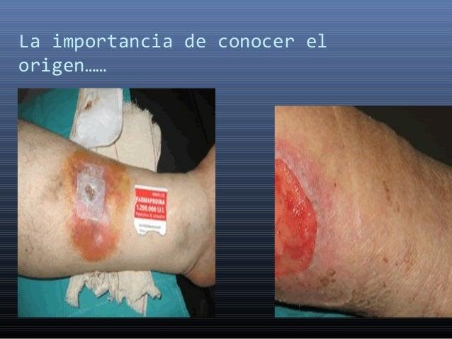 Pie Diabetico en Honduras Dr: Victor Raudales