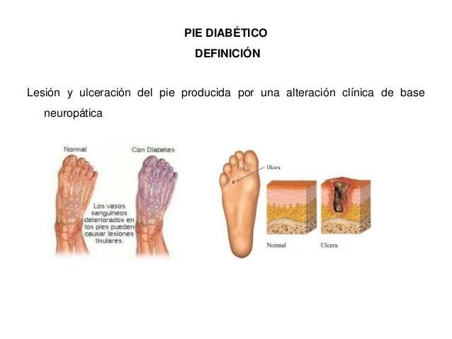 Pie diabético sosaelba_nuevo Slide 2