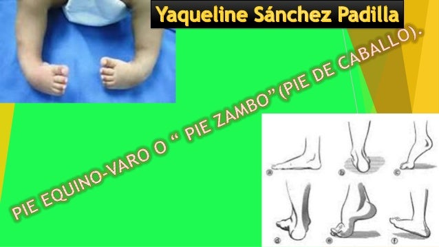 Pie Equino Varo Congenito Pdf Download