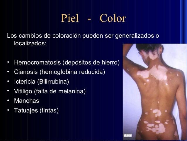 Como arreglar de la persona las manchas de edad de pigmento sobre la persona
