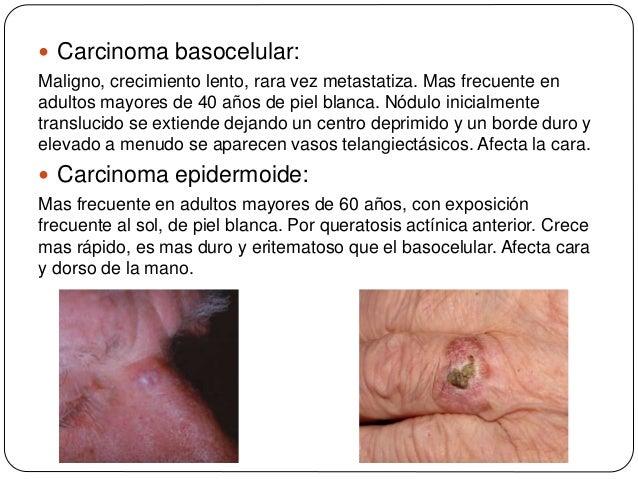 Exploracion fisica de piel y tegumentos