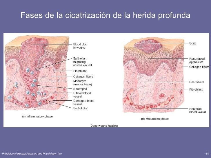 La vaselina del acné