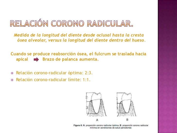 Enfermedadperiodontale blogspot further Por Que Reponer Dientes Perdidos further Dientes moreover Rayos 1 also Copia De Ortognaticlase. on perdida osea alveolar