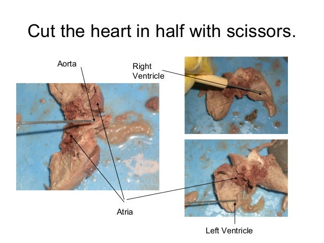 fetal pig heart dissection