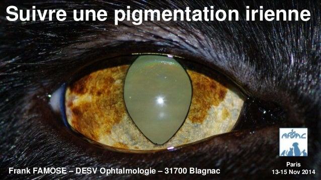 Suivre une pigmentation irienne  Frank FAMOSE – DESV Ophtalmologie – 31700 Blagnac  Paris  13-15 Nov 2014