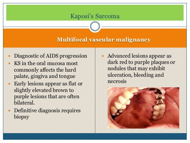 notch proteins and kaposis sarcoma essay