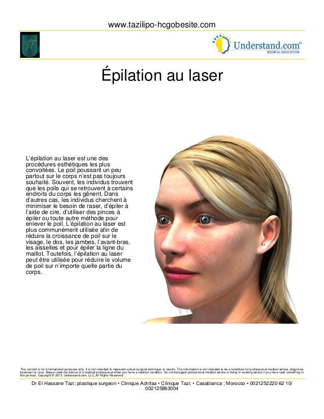 www.tazilipo-hcgobesite.com Épilation au laser L'épilation au laser est une des procédures esthétiques les plus convoitées...