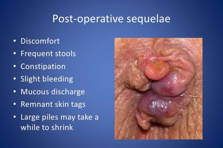 leakage Hemorrhoidectomy complication anal
