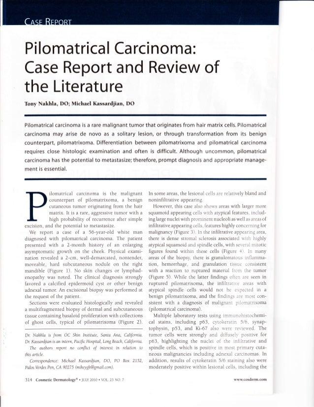 PilomatricaICarcinoma: CaseReportandReviewof theLiterature Tony Nakhla, DO; Michael Kassardjian, DO Pilomatricalcarcinomai...