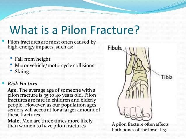 Pilon fractures - Tibial plafond fracture classification ...