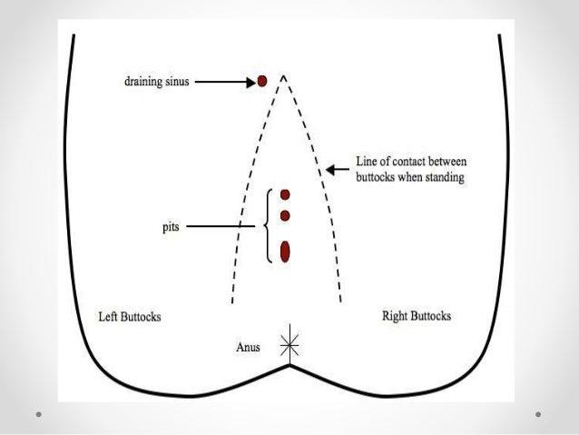 Natal Cleft Diagram Find Wiring Diagram