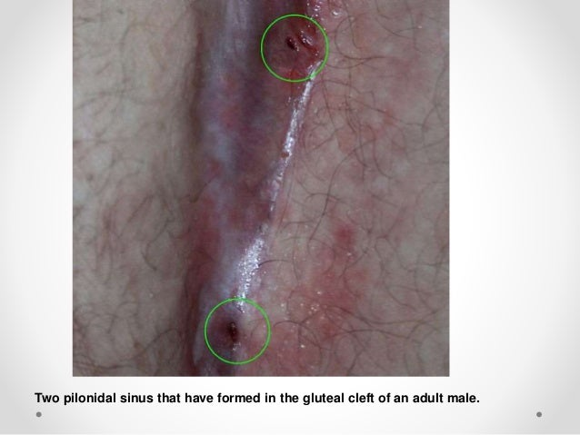 After pilonidal & before pictures cyst