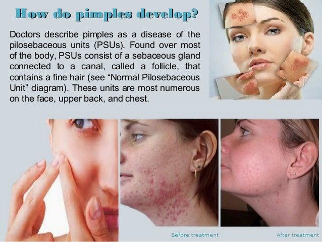 4  how do pimples develop?