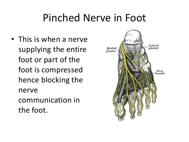 How to Get Rid of Pinched nerve in foot