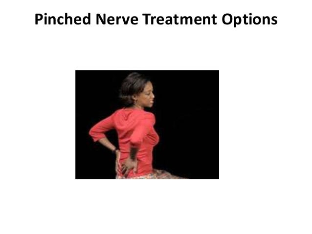Pinched Nerve Treatment Options