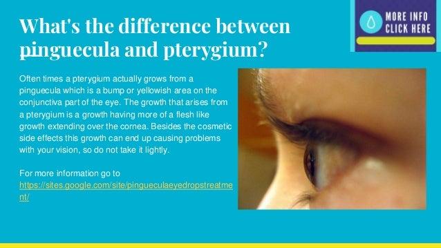 Pinguecula Eye Drops with Dipyridamole  Pinguecula Eye ...