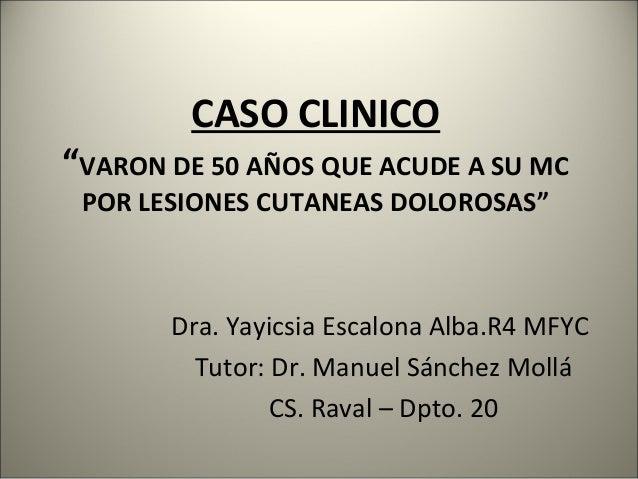 """CASO CLINICO""""VARON DE 50 AÑOS QUE ACUDE A SU MCPOR LESIONES CUTANEAS DOLOROSAS""""Dra. Yayicsia Escalona Alba.R4 MFYCTutor: D..."""
