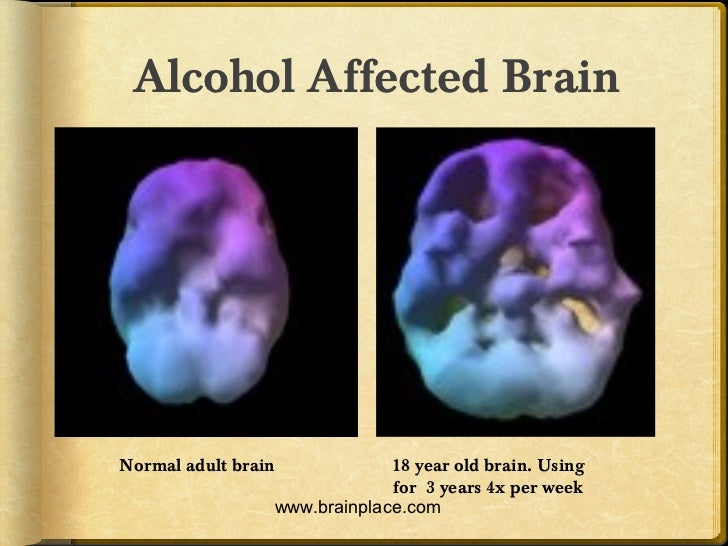 ... 18 year old brain. Using for 3 years 4x per week www.brainplace.com; 26.