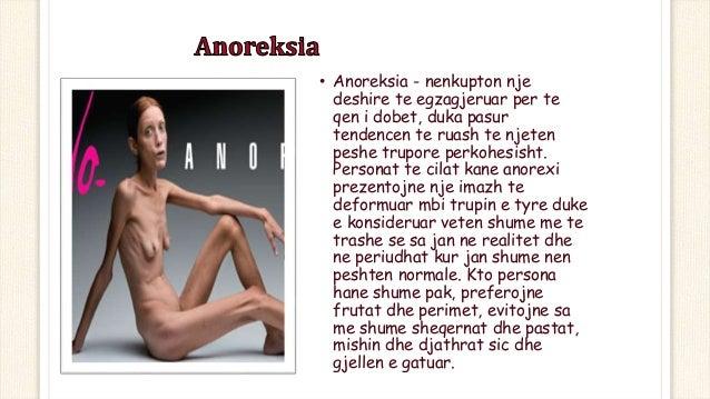 • Anoreksia - nenkupton nje deshire te egzagjeruar per te qen i dobet, duka pasur tendencen te ruash te njeten peshe trupo...