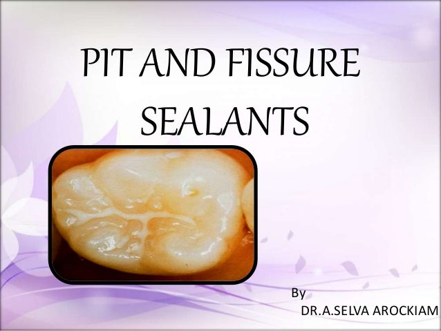 PIT AND FISSURE SEALANTS By DR.A.SELVA AROCKIAM