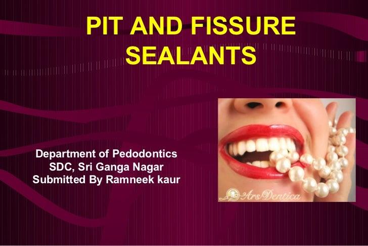 Perfect PIT AND FISSURE SEALANTSDepartment Of Pedodontics SDC, Sri Ganga  NagarSubmitted By Ramneek ...