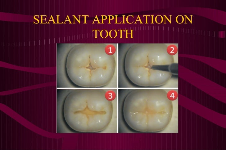 Pit and fissure sealants