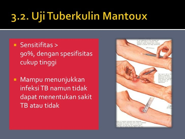 tb meningitis steroid dose