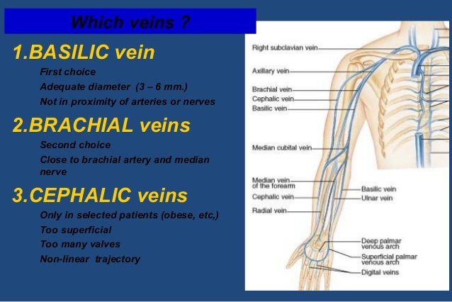 tarting your venous access program, Cephalic Vein