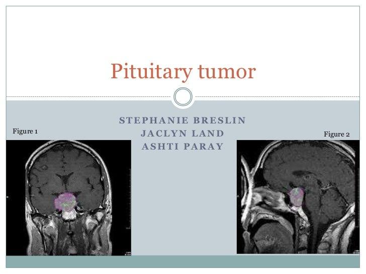 Pituitary tumor           STEPHANIE BRESLINFigure 1      JACLYN LAND      Figure 2              ASHTI PARAY